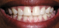 Closeup of Martha's smile before treatment