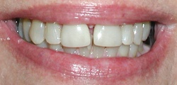 Closeup of JoAnn's smile before treatment