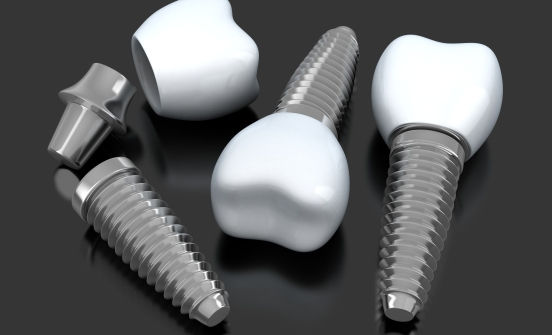 Three animated dental implants