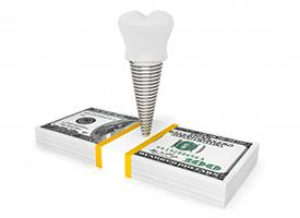dental implant and crown on top of a stack of cash