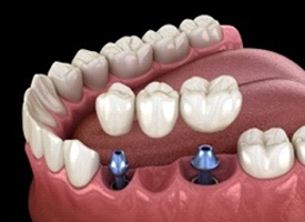 A digital image of a fixed bridge being placed over two dental implants on the lower arch