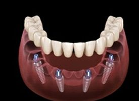 A digital image of four dental implants along the lower arch of the mouth with an implant denture being secured to the tops of the implants