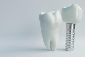replica of a dental implant